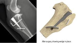 Dog MMP CCL Surgery